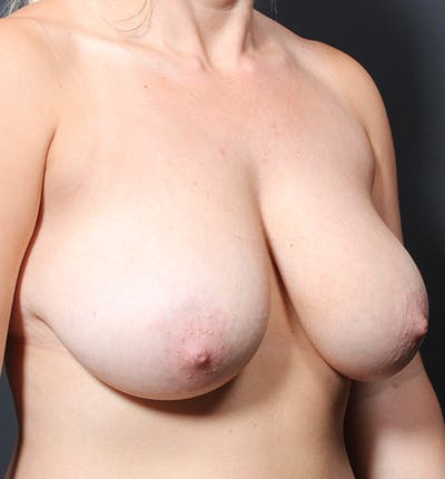 Breast Reduction Gallery - Patient 14089627 - Image 1