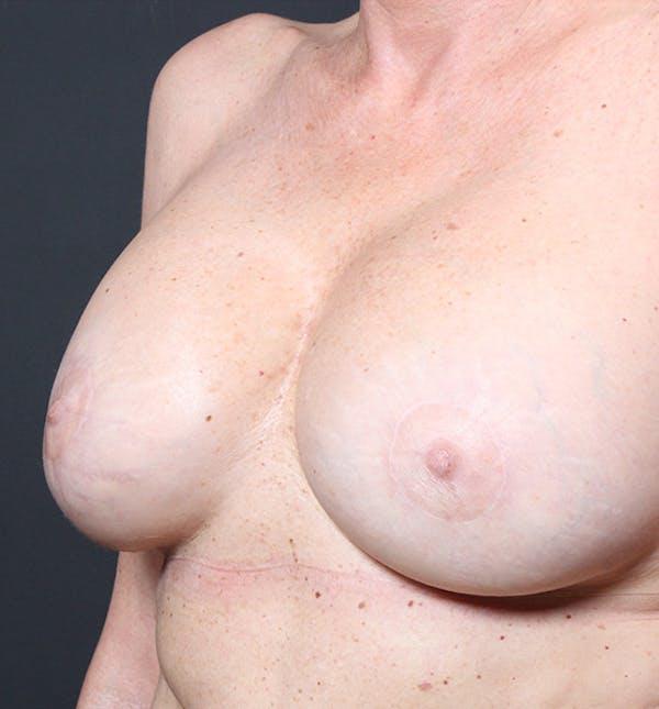Breast Lift Mastopexy Gallery - Patient 14089625 - Image 2