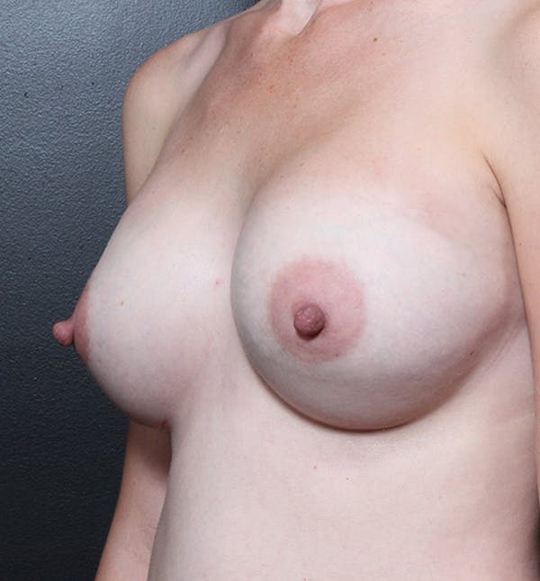 Breast Augmentation Gallery - Patient 14089622 - Image 2