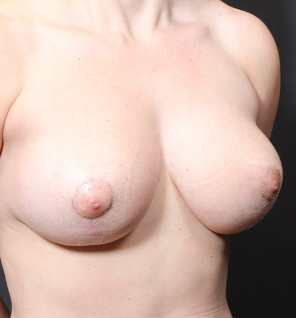 Breast Reduction Gallery - Patient 14089627 - Image 2
