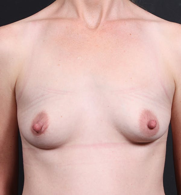 Breast Augmentation Gallery - Patient 14089622 - Image 3