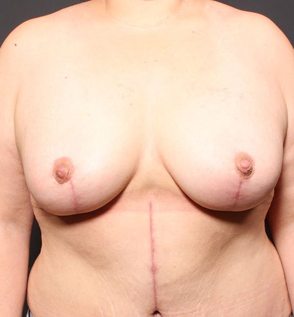 Breast Aug Fat Grafting Gallery - Patient 14089623 - Image 4