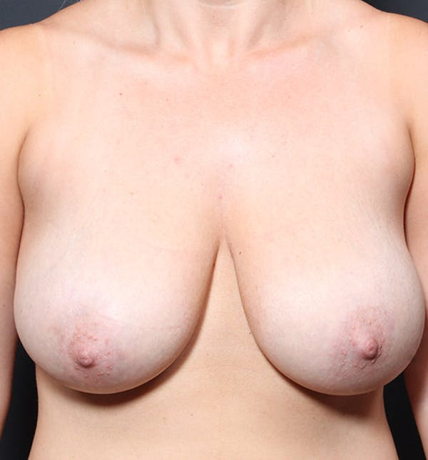 Breast Reduction Gallery - Patient 14089627 - Image 3