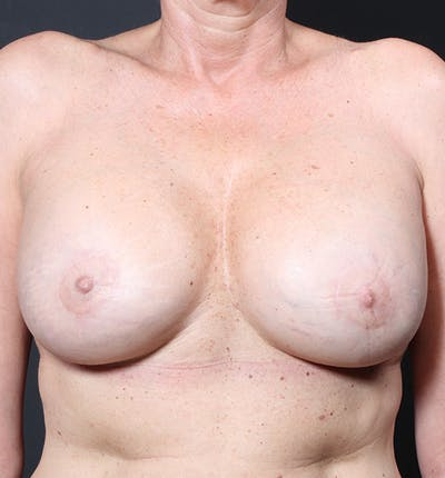 Breast Lift Mastopexy Gallery - Patient 14089625 - Image 4
