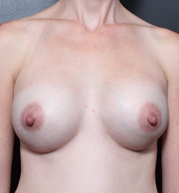 Breast Augmentation Gallery - Patient 14089622 - Image 4