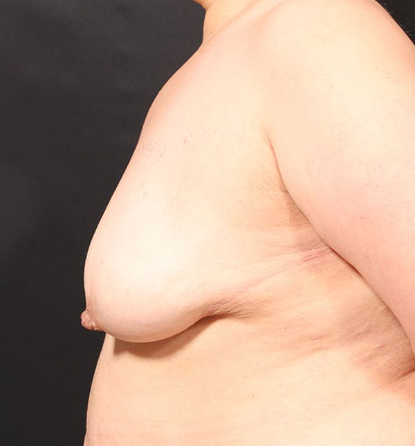 Breast Aug Fat Grafting Gallery - Patient 14089623 - Image 5