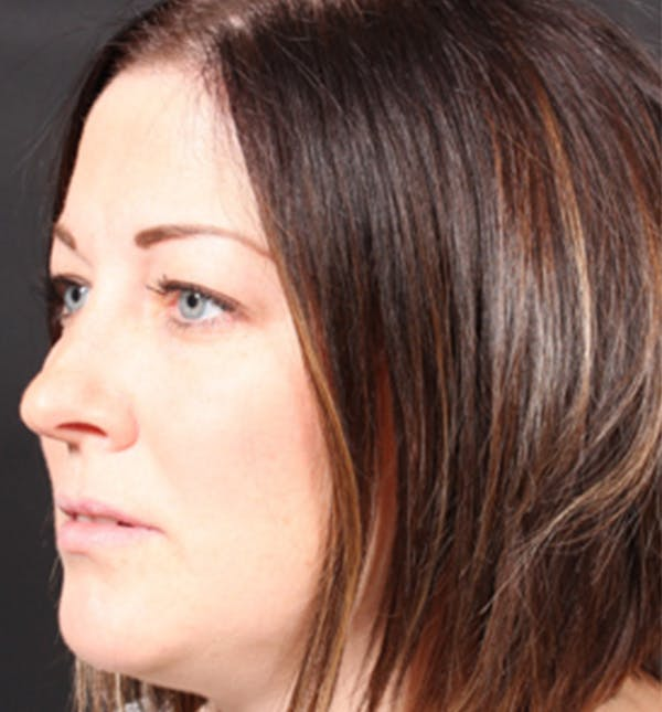 Injectables Gallery - Patient 14089629 - Image 1