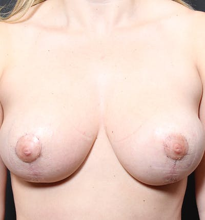 Breast Reduction Gallery - Patient 14089627 - Image 4