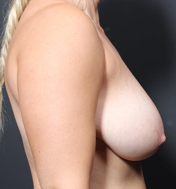 Breast Reduction Gallery - Patient 14089627 - Image 5