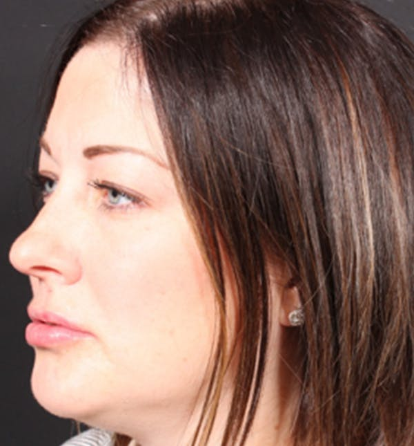 Injectables Gallery - Patient 14089629 - Image 2