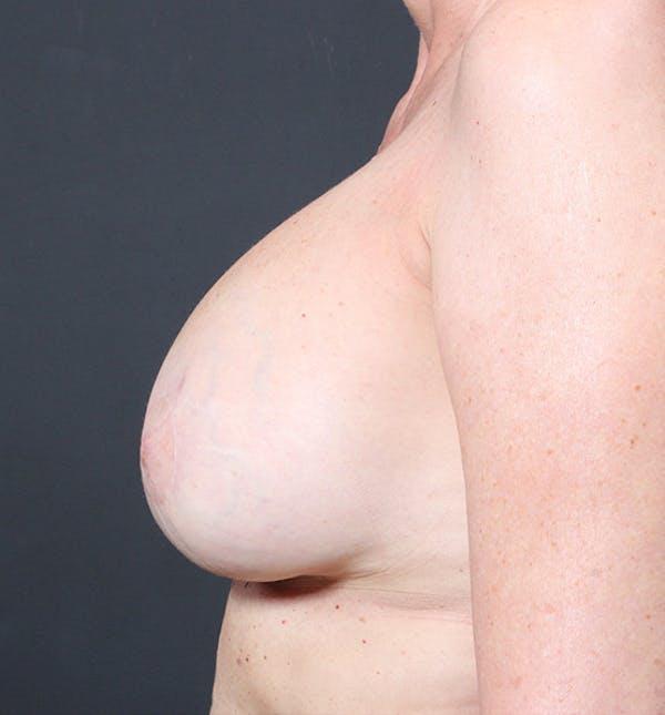 Breast Lift Mastopexy Gallery - Patient 14089625 - Image 6