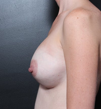 Breast Augmentation Gallery - Patient 14089622 - Image 6