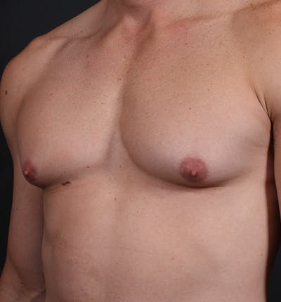 Male Chest Reduction Gallery - Patient 14089628 - Image 1