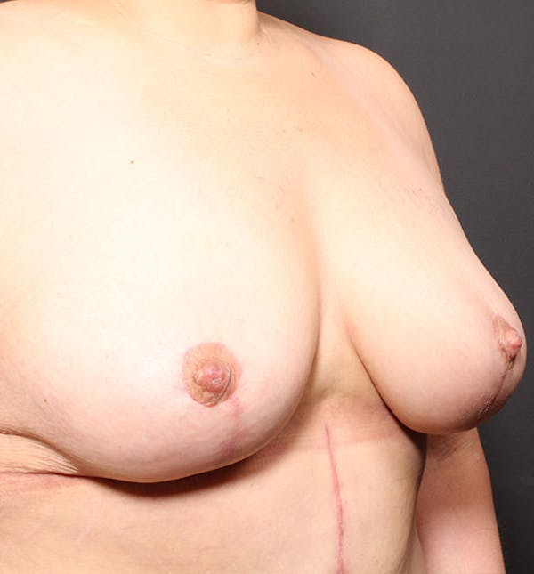Breast Aug Fat Grafting Gallery - Patient 14089623 - Image 8