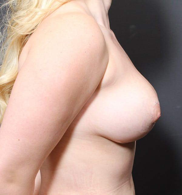 Breast Reduction Gallery - Patient 14089627 - Image 6
