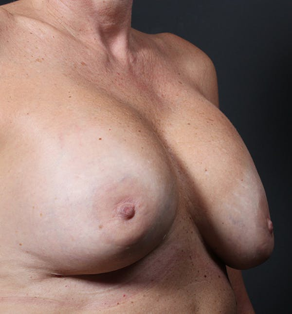 Breast Lift Mastopexy Gallery - Patient 14089625 - Image 7