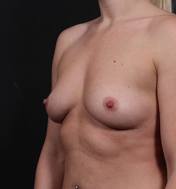 Breast Augmentation Gallery - Patient 14089630 - Image 1