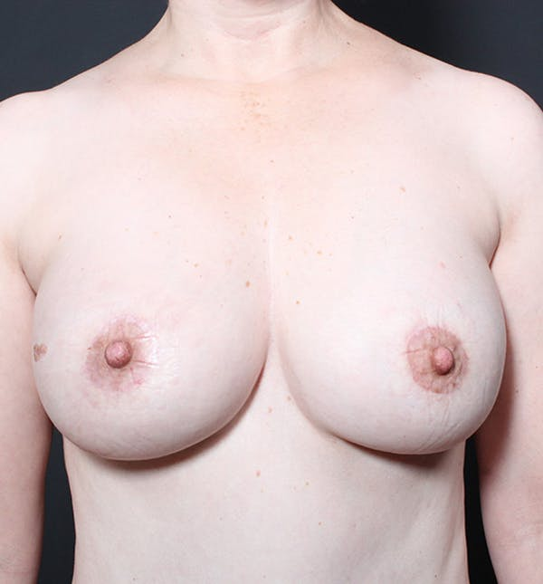Breast Implant Revision Gallery - Patient 14089624 - Image 4