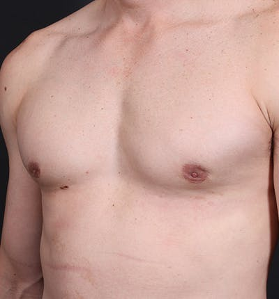 Male Chest Reduction Gallery - Patient 14089628 - Image 2