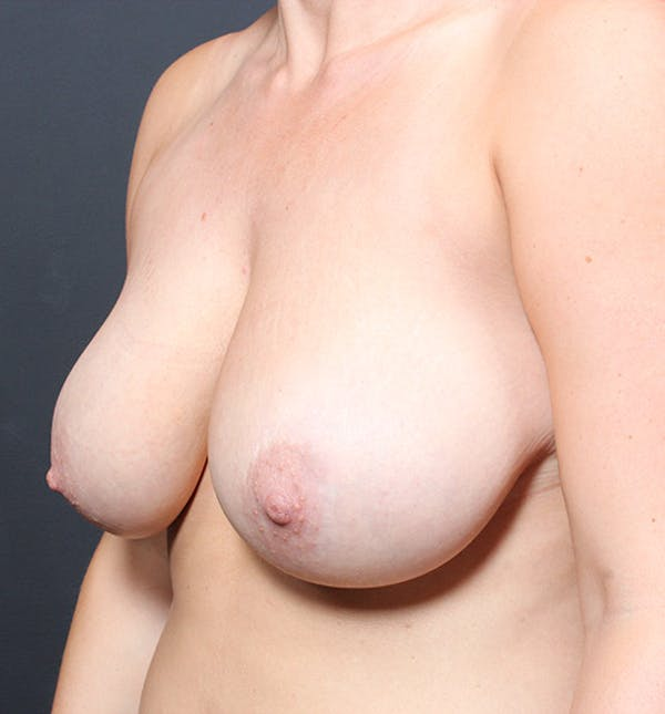 Breast Reduction Gallery - Patient 14089627 - Image 7