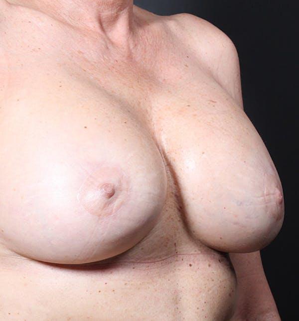 Breast Lift Mastopexy Gallery - Patient 14089625 - Image 8