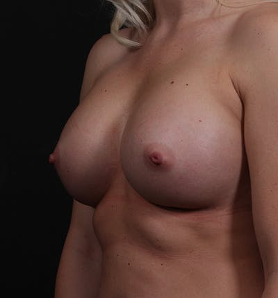 Breast Augmentation Gallery - Patient 14089630 - Image 2
