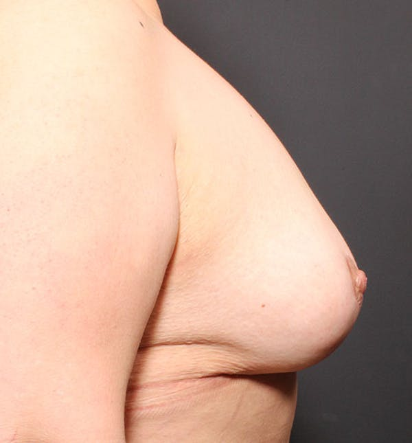 Breast Aug Fat Grafting Gallery - Patient 14089623 - Image 10