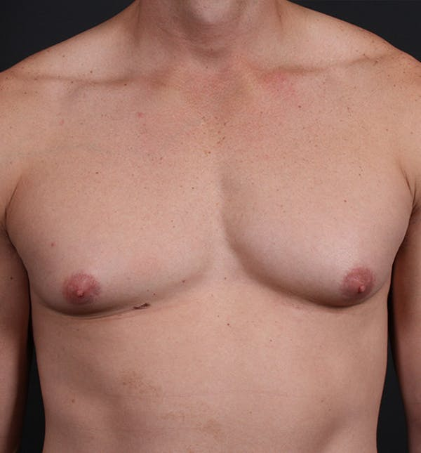 Male Chest Reduction Gallery - Patient 14089628 - Image 3