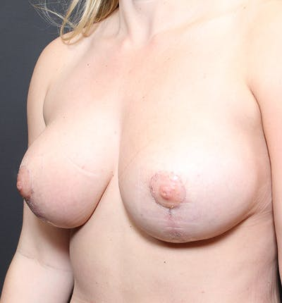 Breast Reduction Gallery - Patient 14089627 - Image 8