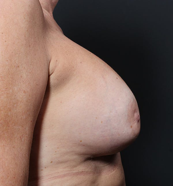Breast Lift Mastopexy Gallery - Patient 14089625 - Image 9