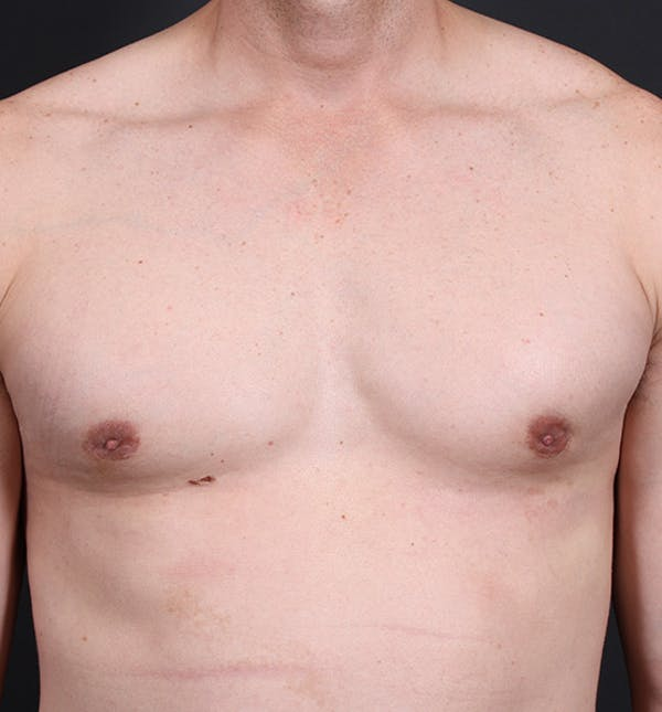 Male Chest Reduction Gallery - Patient 14089628 - Image 4