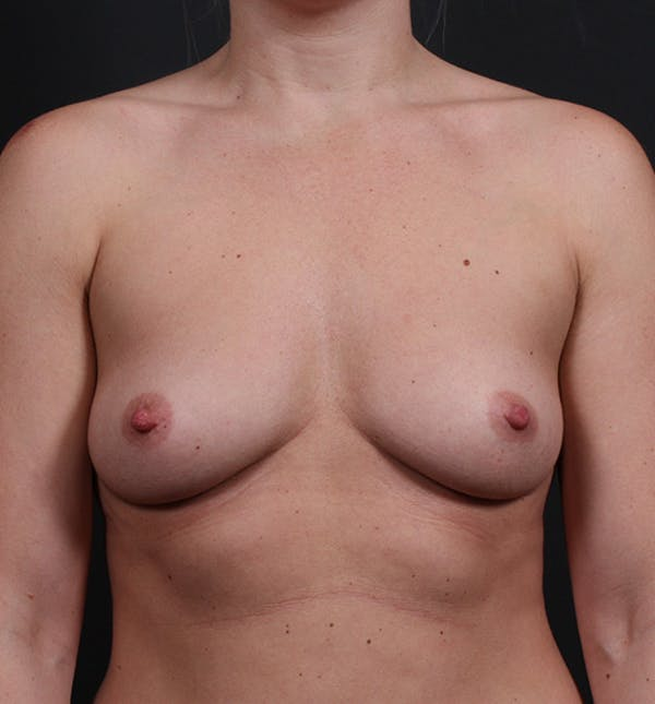 Breast Augmentation Gallery - Patient 14089630 - Image 3