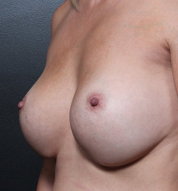 Breast Implant Revision Gallery - Patient 14089634 - Image 1