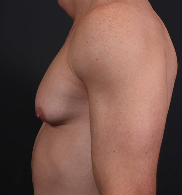 Male Chest Reduction Gallery - Patient 14089628 - Image 5