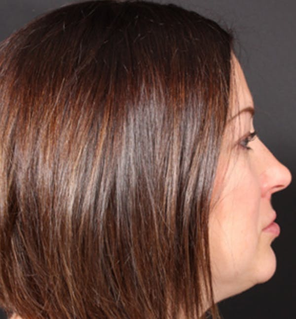 Injectables Gallery - Patient 14089629 - Image 6