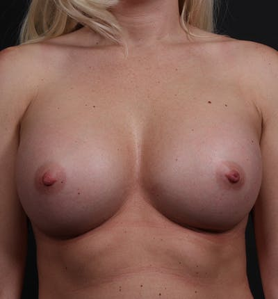 Breast Augmentation Gallery - Patient 14089630 - Image 4