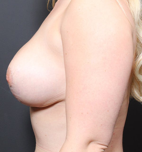 Breast Reduction Gallery - Patient 14089627 - Image 10