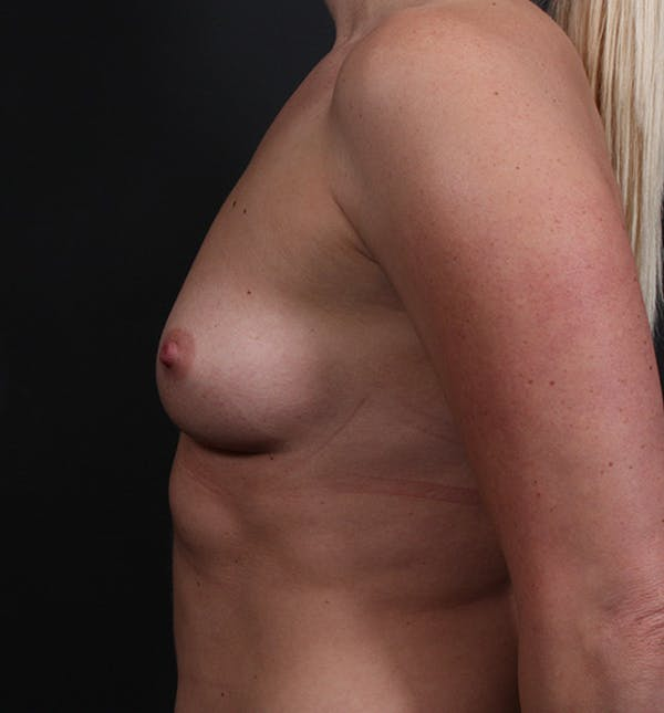 Breast Augmentation Gallery - Patient 14089630 - Image 5