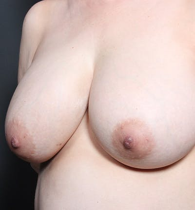 Breast Lift Mastopexy Gallery - Patient 14089633 - Image 1