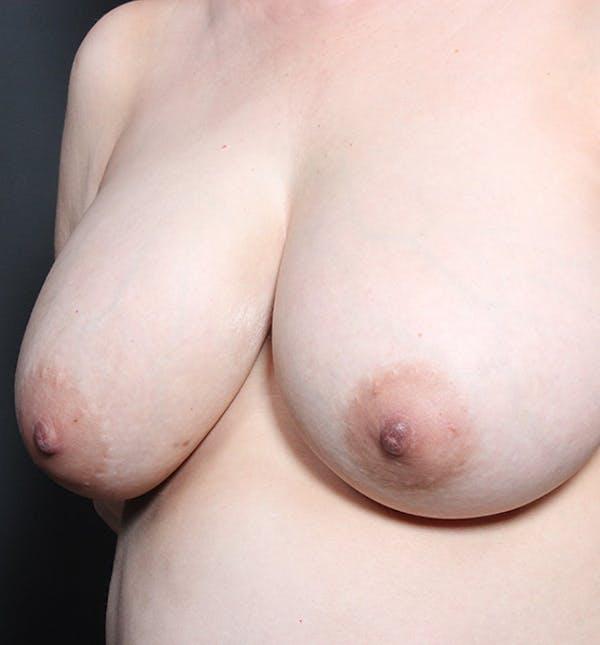 Breast Lift Mastopexy Gallery - Patient 14089633 - Image 1