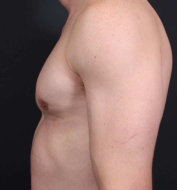 Male Chest Reduction Gallery - Patient 14089628 - Image 6