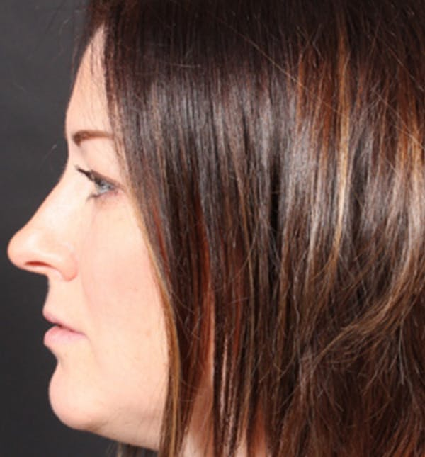 Injectables Gallery - Patient 14089629 - Image 7