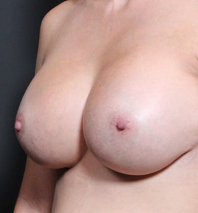 Breast Implant Revision Gallery - Patient 14089634 - Image 2
