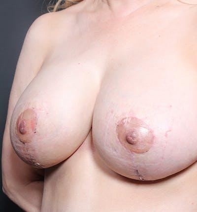 Breast Lift Mastopexy Gallery - Patient 14089633 - Image 2