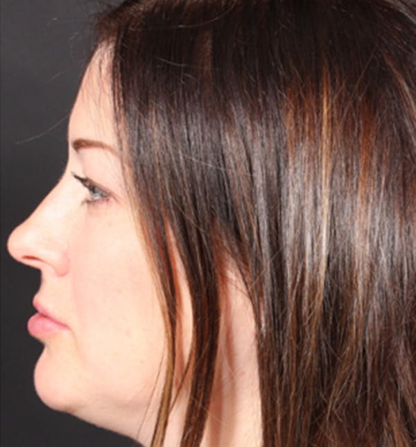 Injectables Gallery - Patient 14089629 - Image 8
