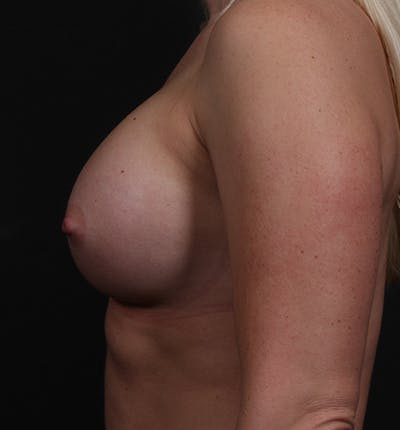 Breast Augmentation Gallery - Patient 14089630 - Image 6
