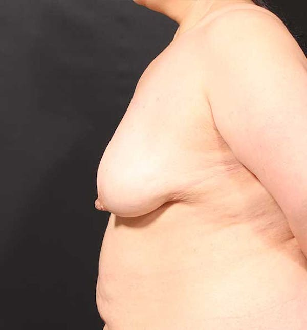 Breast Aug Fat Grafting Gallery - Patient 14089631 - Image 5