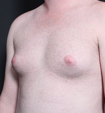 Male Chest Reduction Gallery - Patient 14089635 - Image 1