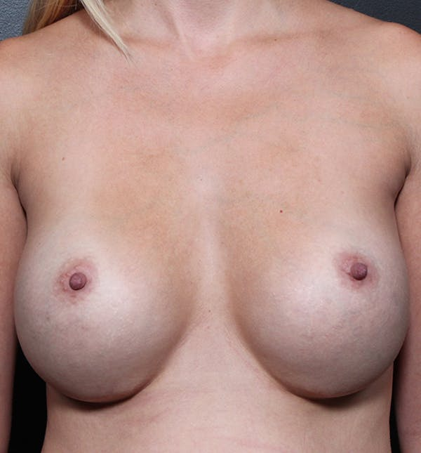 Breast Implant Revision Gallery - Patient 14089634 - Image 3