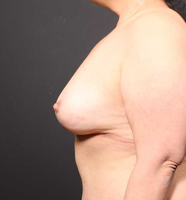 Breast Aug Fat Grafting Gallery - Patient 14089631 - Image 6